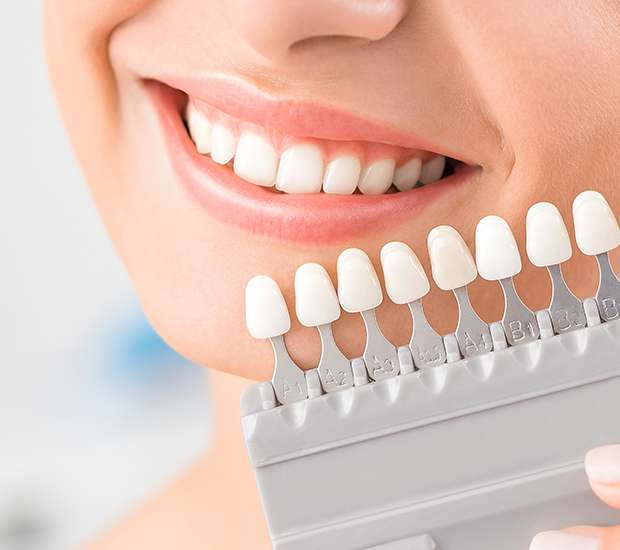 Nashua Dental Veneers and Dental Laminates